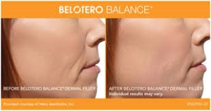 Belotero Before and After 3